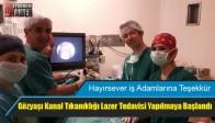 Devlet Hastanesinde Gözyaşı Kanal Tıkanıklığı Lazer Tedavisi Yapılmaya Başlandı
